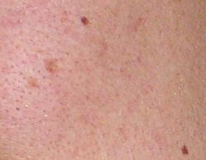 https://www.drlu.ca/wp-content/uploads/2020/06/acne_04.jpg